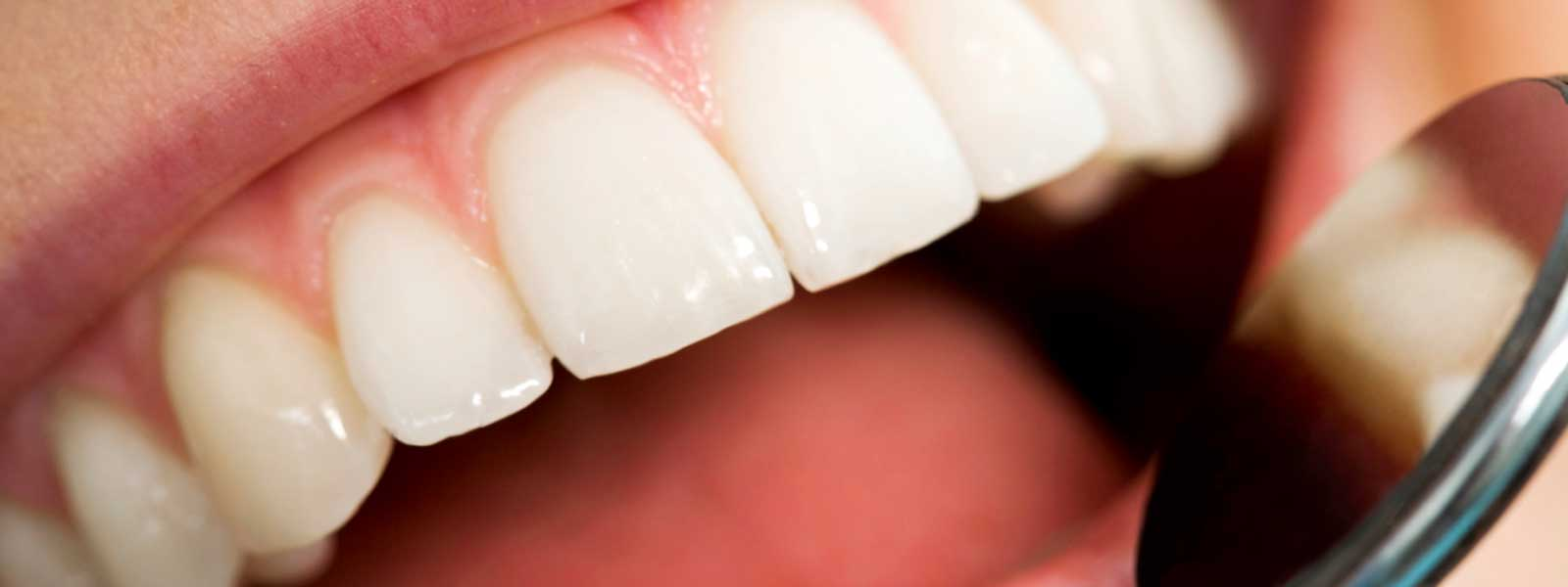 Cosmetic dentistry options improve appearance and enhance your smile